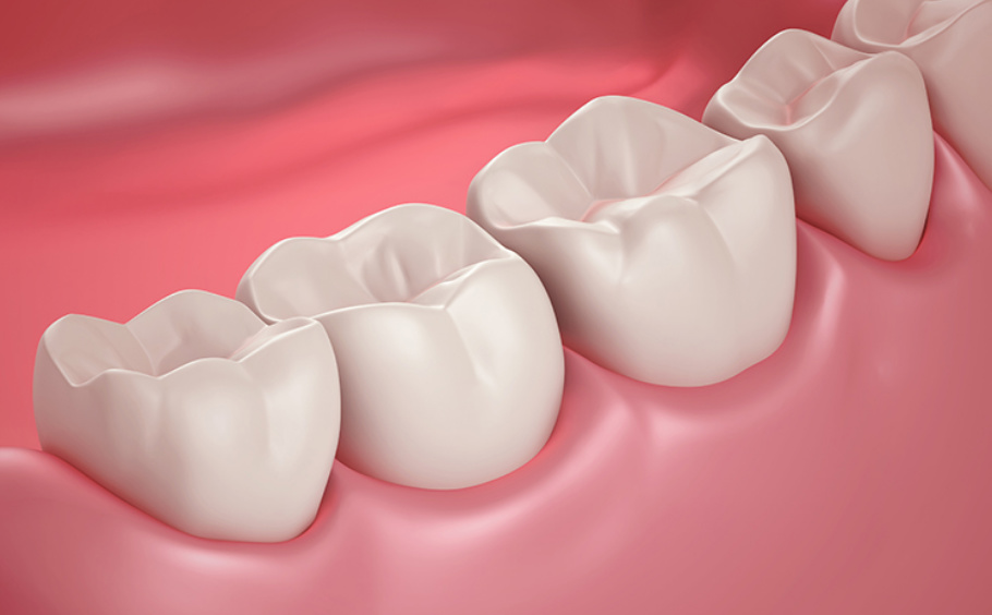 Crooked teeth, worn teeth, fillings, gaps, chips, cracks, and discolorations – you name it, we can fix it! It's no secret that our smiles have a huge effect on how others see us and how we feel about ourselves. Many patients tell us that they would love to fix their teeth, but they assume it will take something extreme to make it possible. They are thrilled to find out there are many conservative options for improvement. Ask us about veneers, bonding, crowns, and more. We also offer both in-office and take-home teeth whitening.